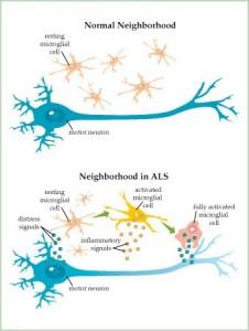ALS-Illustration