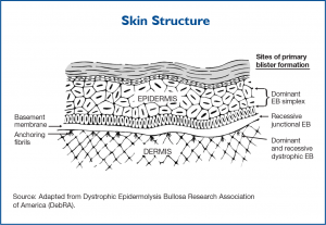 Diagram of skin structure and location of corresponding Epidermolysis Subtypes (1).